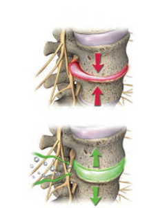 Spinal Decompression with Dr. Grant