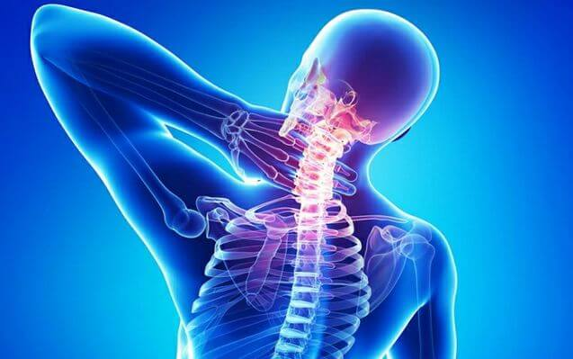Neck Pain from Accident Injuries