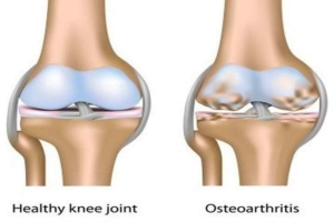 osteoarthritis knee joint drawing Dr. Grant